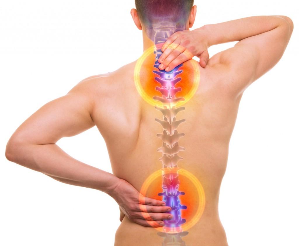 Cómo la homeopatía puede ayudarte a sobrellevar la Espondilitis Anquilosante